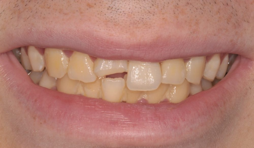 After picture of treatment