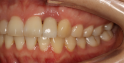 Thumbnail, click to compare enlarged
