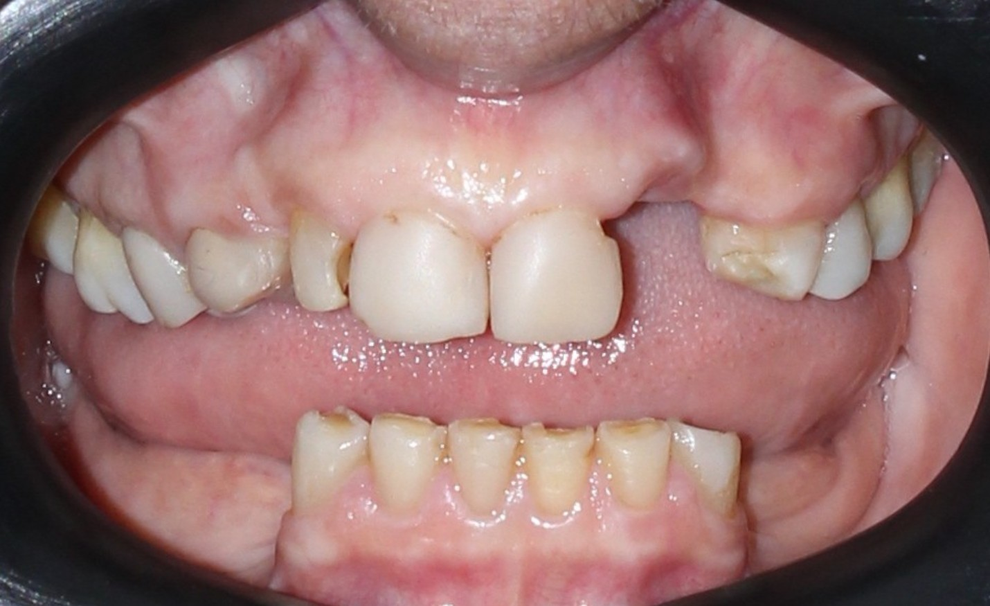 Highlighted picture of treatment