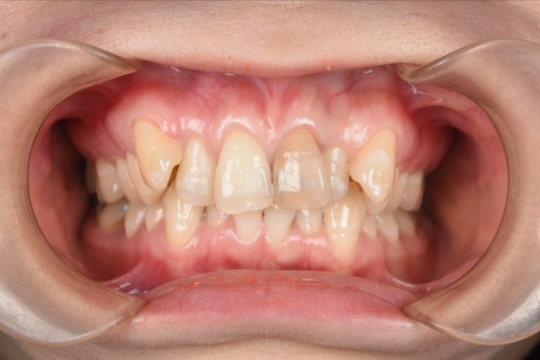 Before picture of treatment